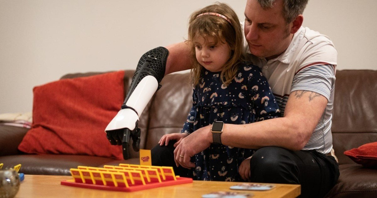 4 65.jpg?resize=412,232 - A Veteran Who Lost His Right Forearm And Hand Got His 'Hero Arm,' A 3D Printed Bionic Arm