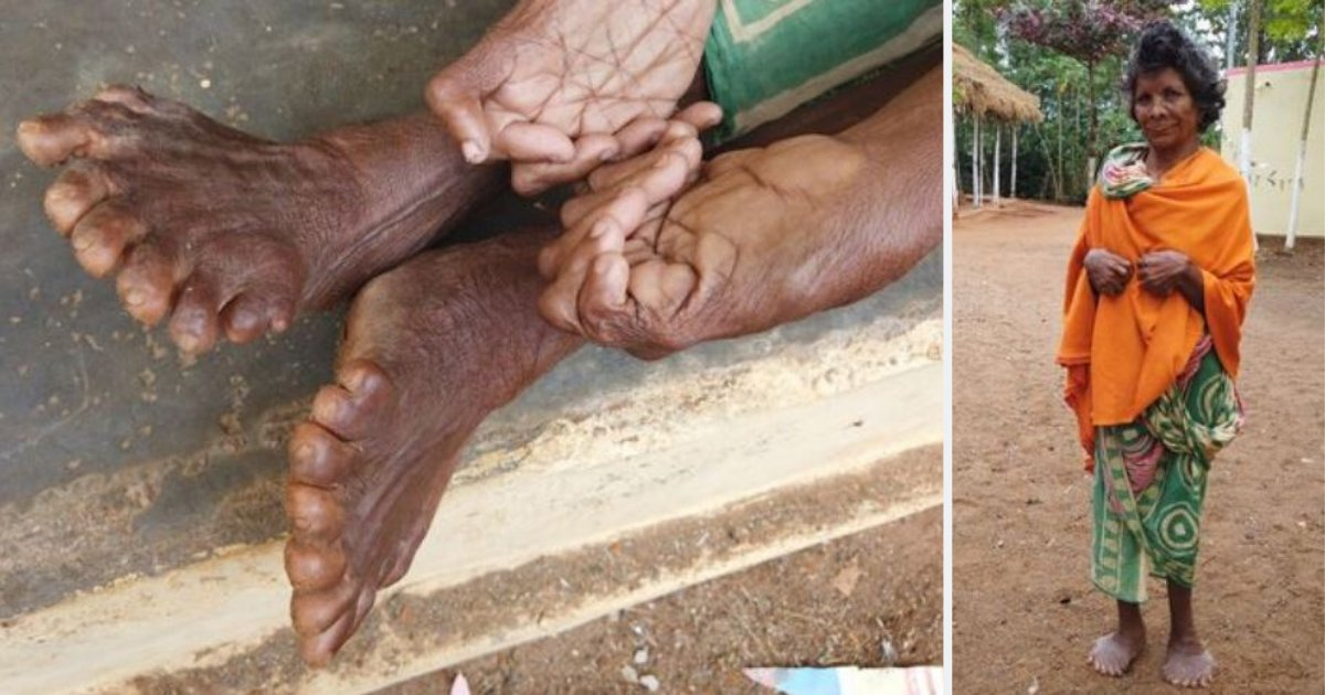 """d5.png?resize=1200,630 - A Woman Born With 12 Fingers and 19 Toes All Set To Enter World Record But Is Branded as """"Witch"""" By Locals"""
