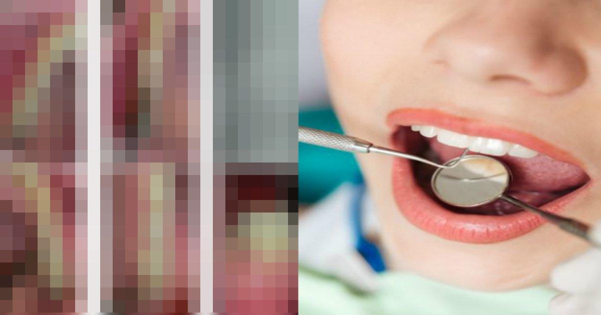 qq 7.jpg?resize=412,232 - 【世界初】「歯肉から毛が生えた」という女性の症例が報告される(画像あり)