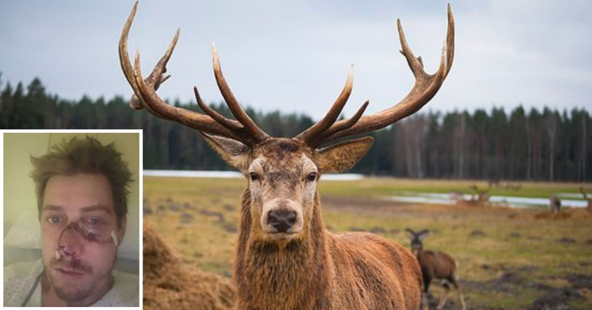 5 11.png?resize=300,169 - In an Attempt to Escape, This Deer Rips Off The Face of French Hunter