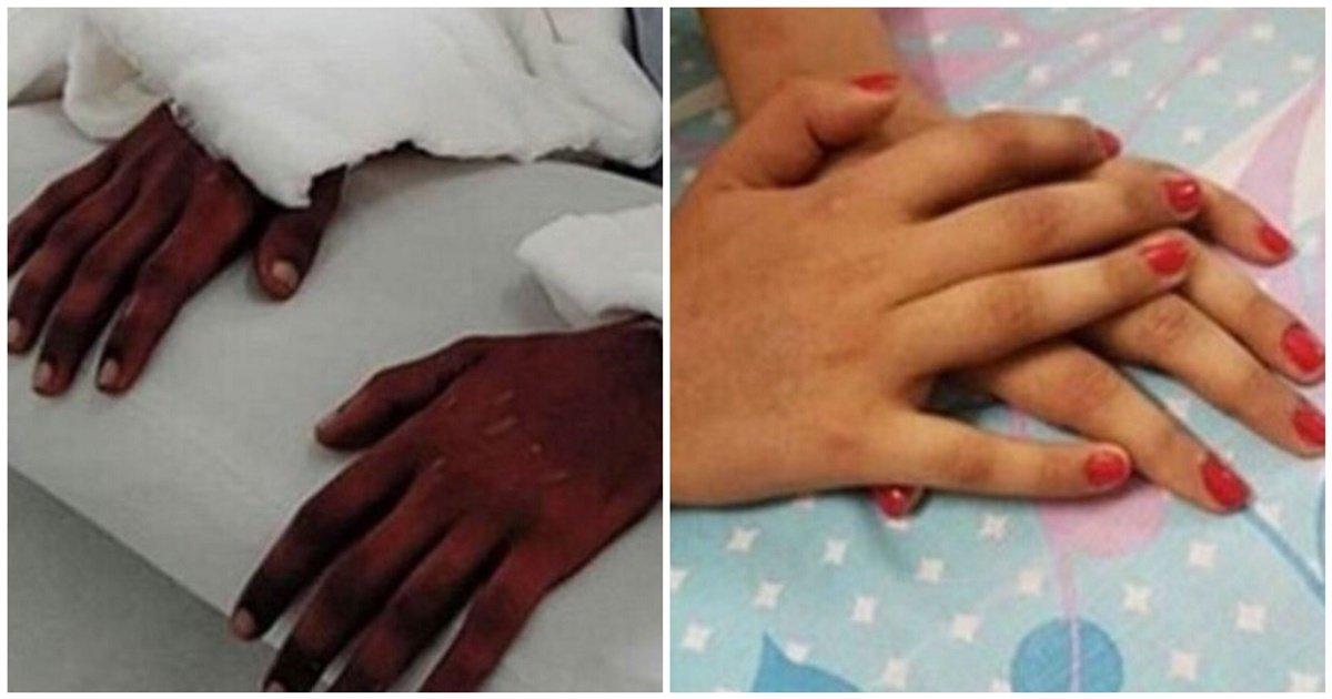 fac0d9b5 bf85 44f6 9cd4 b0dee3f5c85d.jpeg?resize=412,232 - 両腕切断された「黒い皮膚」の男性の腕を移植した少女は、驚くべき変化を経験した