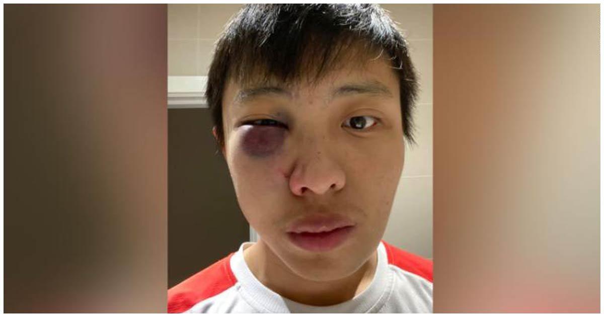 """header asiatico.jpg?resize=412,232 - Estudiante Asiático Fue Atacado Por Grupo De Hombres Que """"No quieren Enfermedades En Su País"""""""