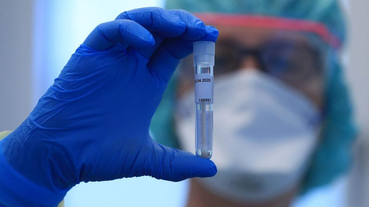 Vaccine against coronavirus could be ready by September - glbnews.com