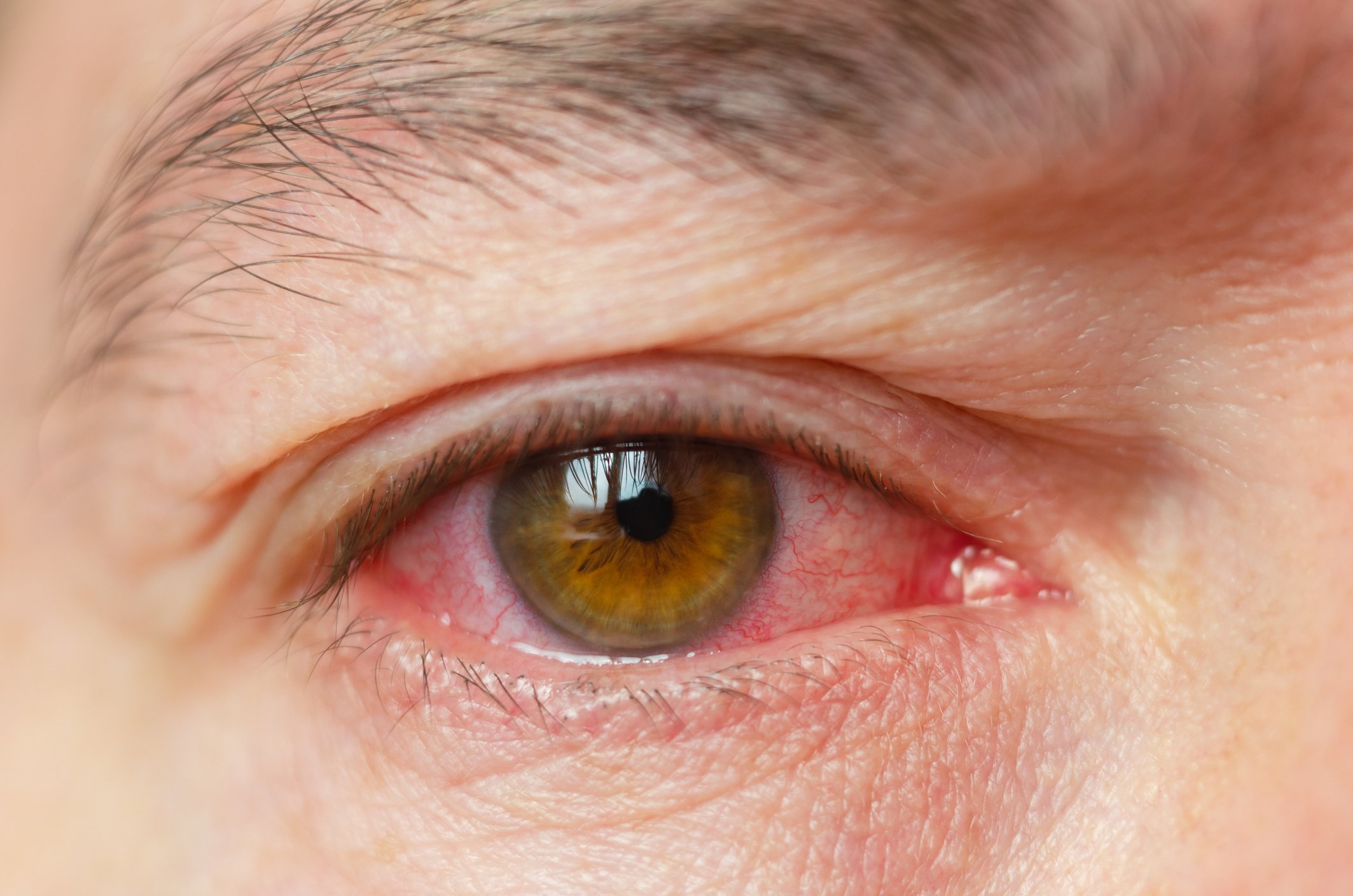 Are Red Eyes a Symptom of Coronavirus? Nurse Claims Patients Look ...