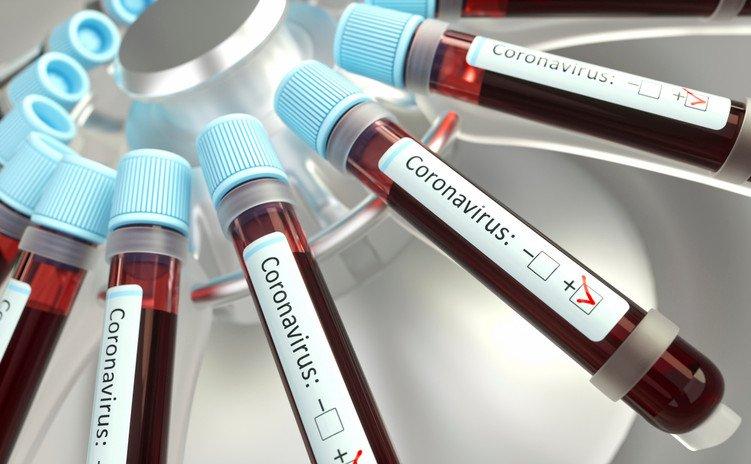 New coronavirus antibody test