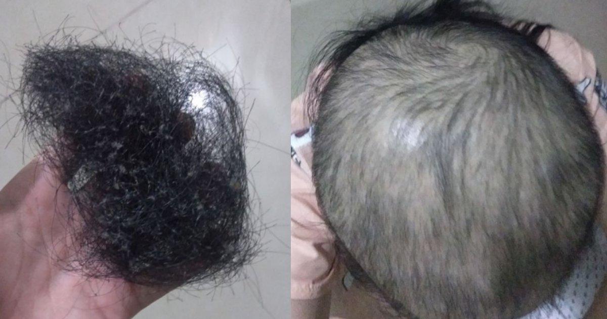 datumou.png?resize=412,232 - ストレスで衝動的に髪の毛を抜いてしまう女性、現在の髪の状態がヤバい…