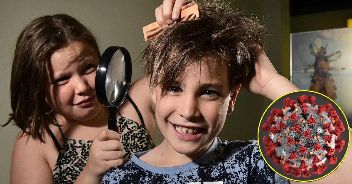 gggsg.jpg?resize=1200,630 - Breaking: Scientists Found That Head Lice Drug May Cure Covid-19 Within 48 Hours