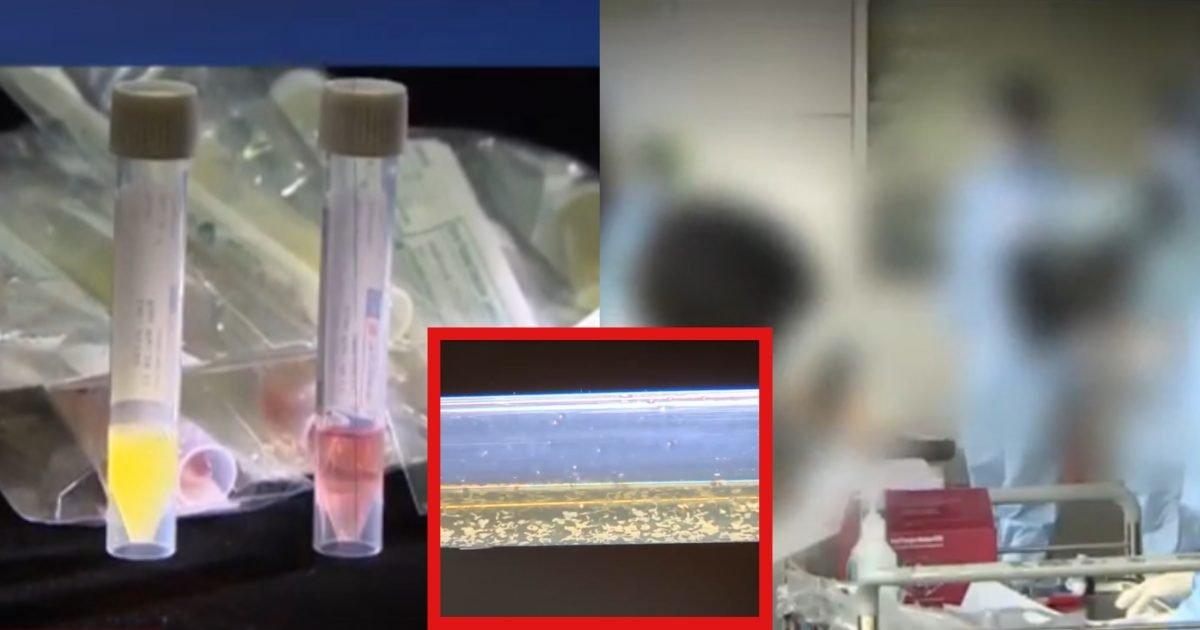 kakaotalk 20200425 015823182 e1587747542158.jpg?resize=412,232 - 해외 수출까지 하는 한국산 '코로나 진단키트'...반 이상 '불량품' 발견돼