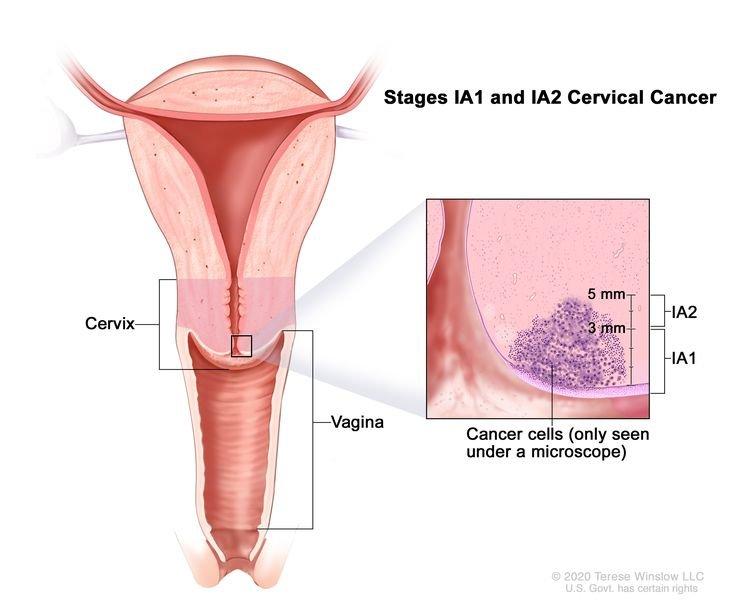 Cervical cancer symptoms at different stages