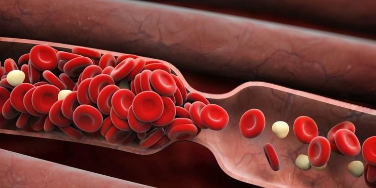 Blood clot signs in vessels