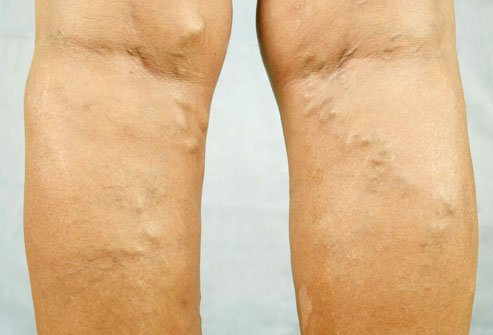 Varicose Veins are blood clot signs