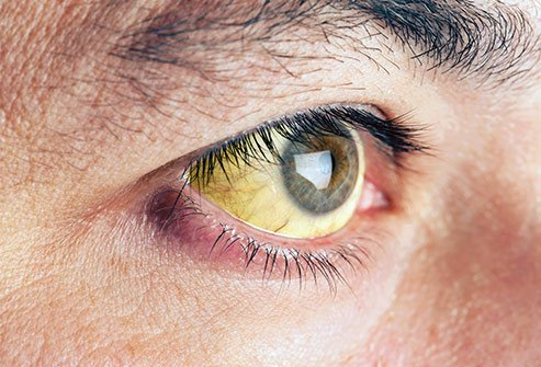 Jaundiced eyes reflect what your eyes say about your health
