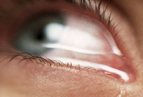 Watery eyes reflect what your eyes say about your health