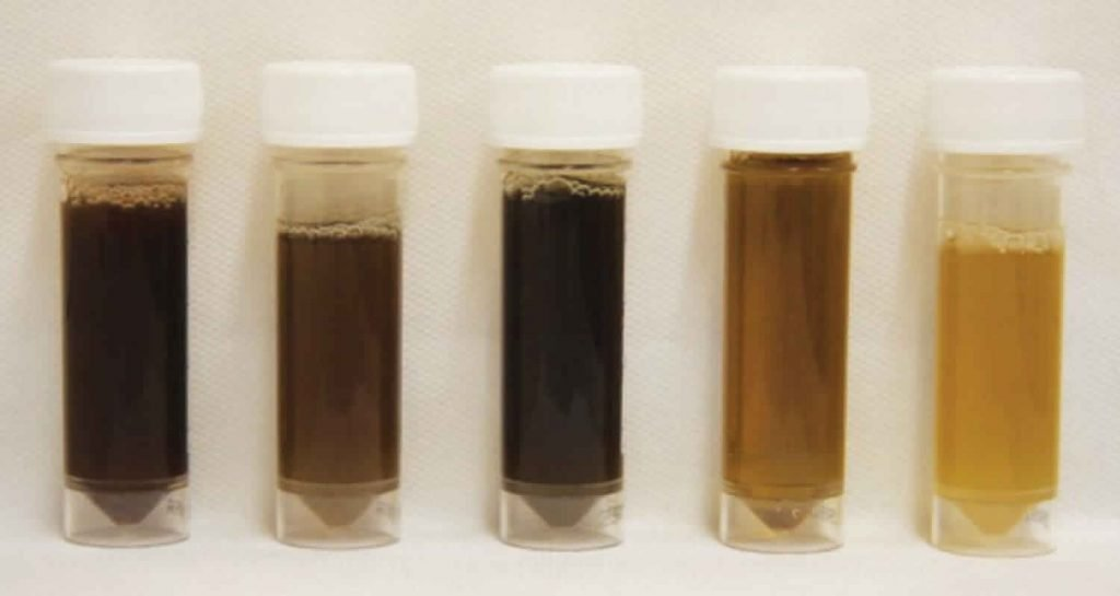 Differentiating healthy urine color