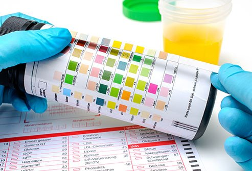 Identifying healthy urine color