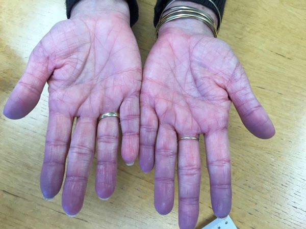 Blood circulation symptoms