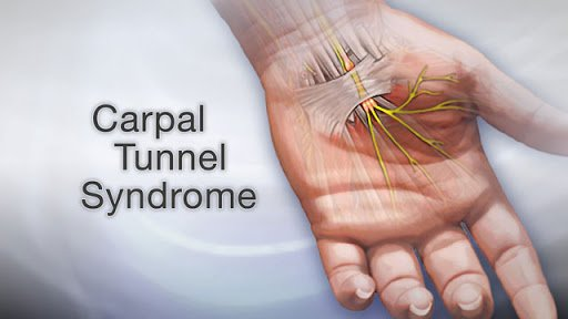 carpal tunnel syndrome cure