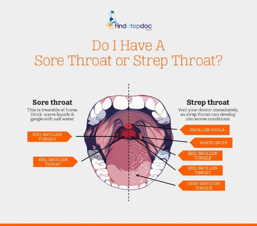 some strep throat symptoms