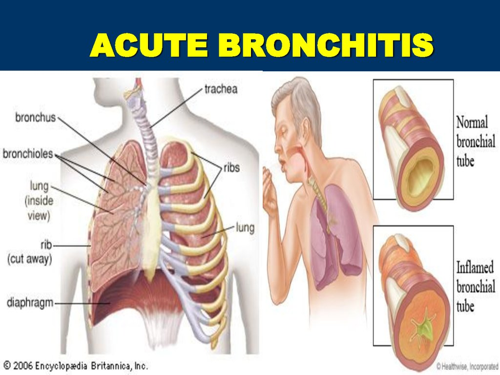 is bronchitis contagious? symptoms and preventions