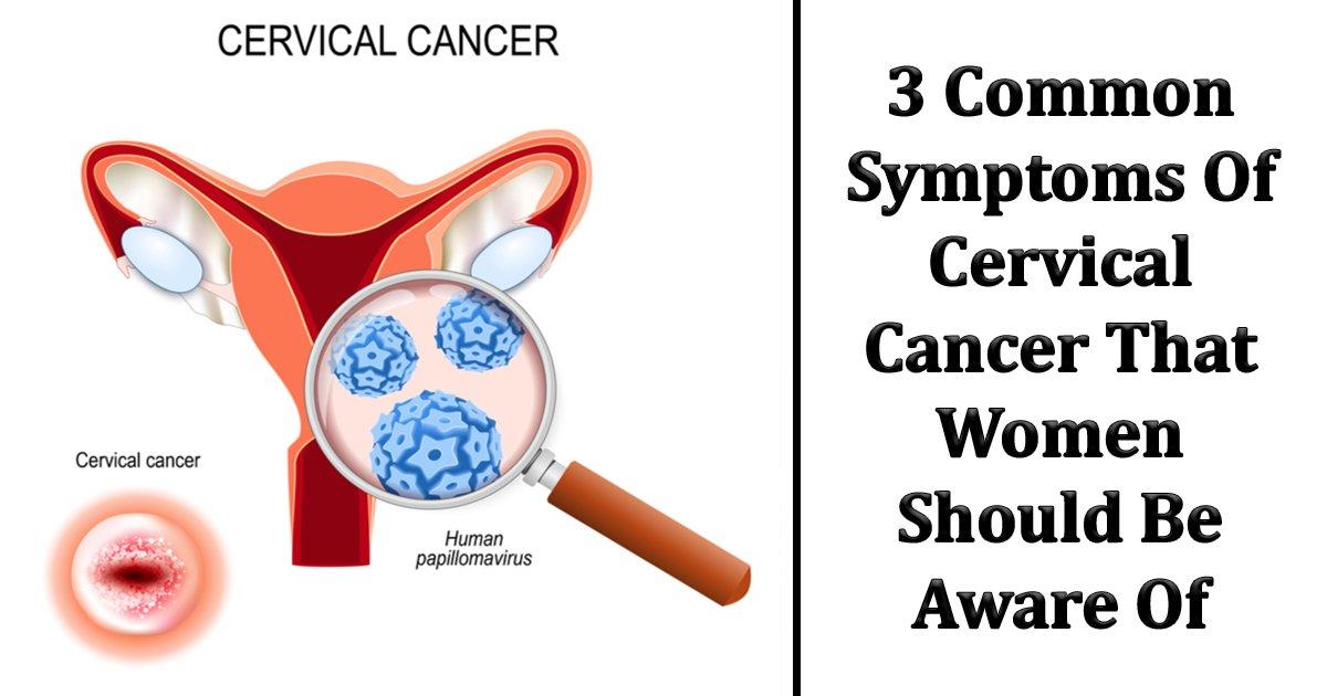 agggag.jpg?resize=412,232 - Cervical Cancer Symptoms - How Uterine and Vaginal Differ