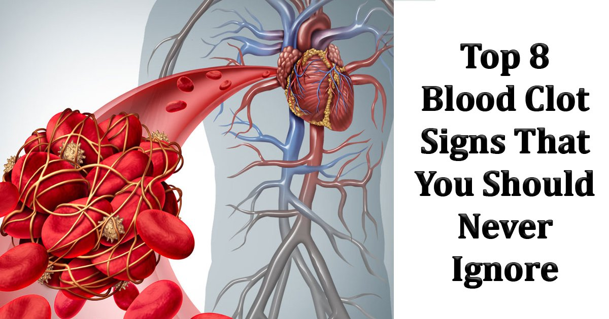 blood clot sign.jpg?resize=412,232 - Top 8 Blood Clot Signs That Trigger Warning