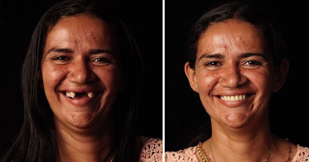 dentist.png?resize=1200,630 - Dentist Travels Around The World To Fix Teeth Of Less-Fortunate People For FREE