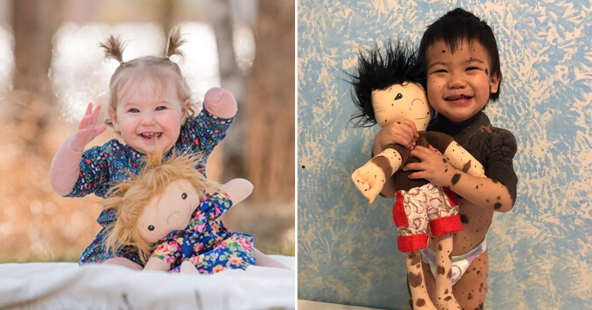 dolls12.png?resize=412,232 - Woman Makes Look-Alike Dolls For Children With Disabilities To Make Them Feel Special