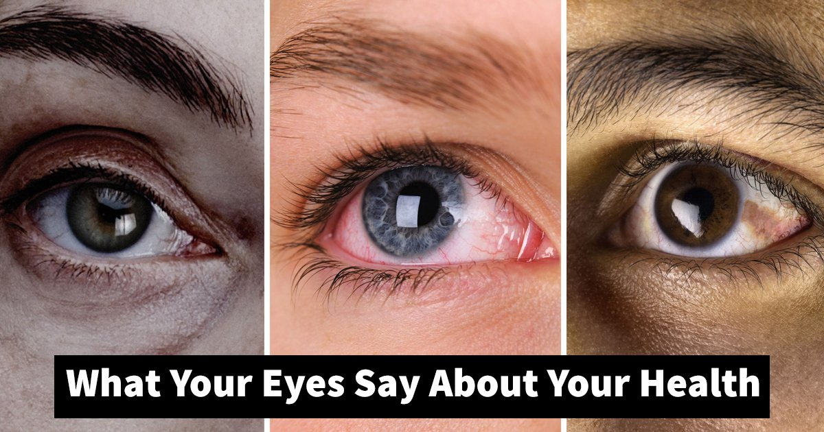 eyes about health.jpg?resize=1200,630 - 7 Signs To Know What Your Eyes Say About Your Health