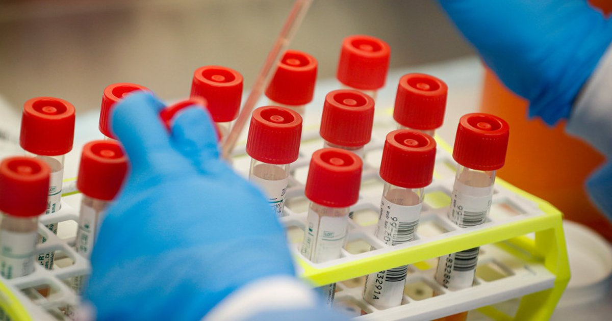 hsdsfd.jpg?resize=1200,630 - A Brand New Antibody Test With 99% Accuracy Has Been Given A Nod For Europe-Wide Use