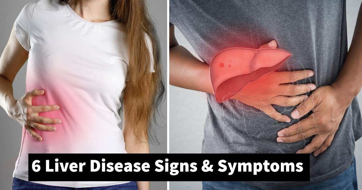 liver disease.jpg?resize=412,232 - 6 Liver Disease Symptoms Showing Your Health Crisis