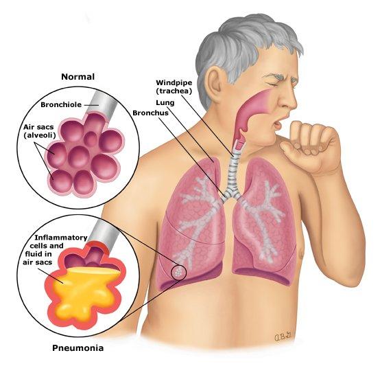 Pneumonia anatomy PI
