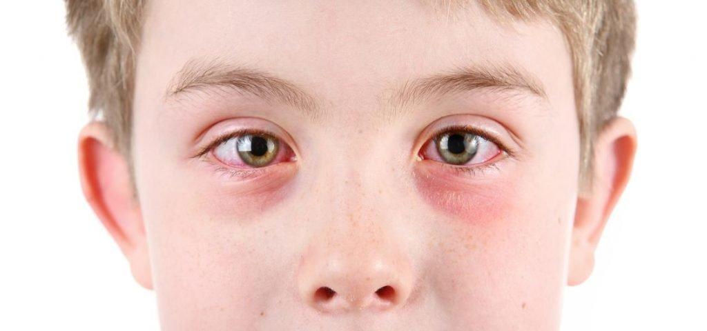 what are pink eye symptoms