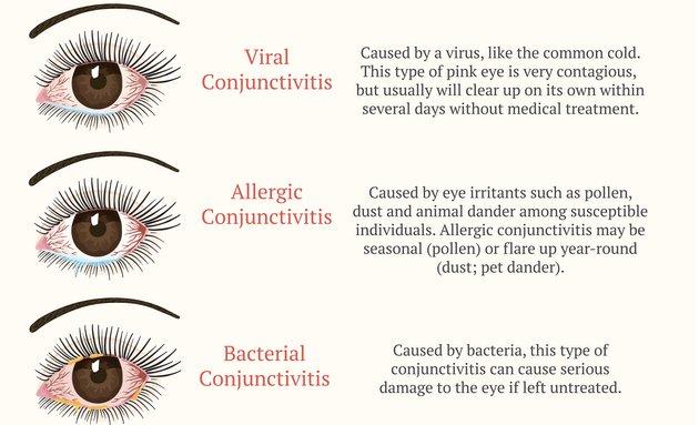types of pink eye symptoms
