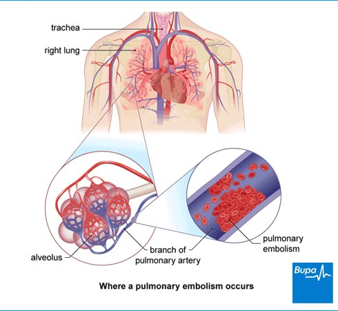 what is pulmonary embolism?