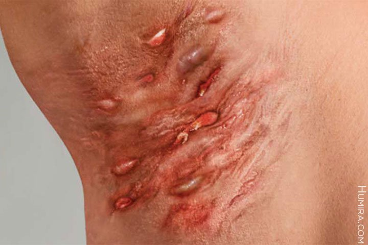 What is hidradenitis suppurativa