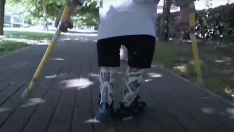 VIDEO: Perdió sus piernas y ahora recauda fondos para el hospital ...