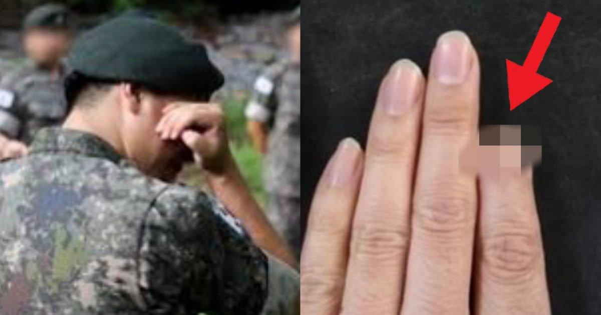 """d181e800 9ff0 4b1e a00b e147741efa19 e1593507658578.jpg?resize=1200,630 - """"'제발' 군대 뺄 수 있으면 가지마세요""""…군대갔다가 '손가락' 잘렸는데 보상 1도 못받은 군인의 사연(증거사진)"""