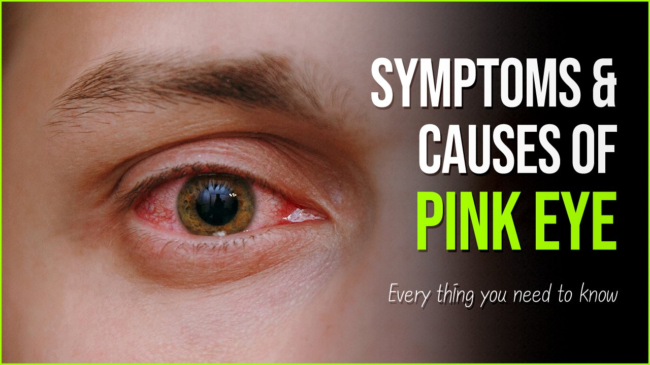 pink eye symptoms.jpg?resize=412,232 - Pink Eye Symptoms: Causes And Treatment of Conjunctiva