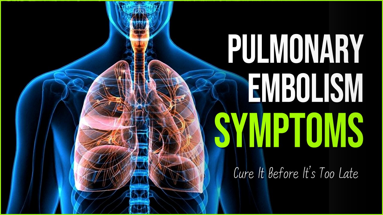 pulmonary empolism.png?resize=412,232 - Pulmonary Embolism: Cure It Before Its Too Late For Your Life
