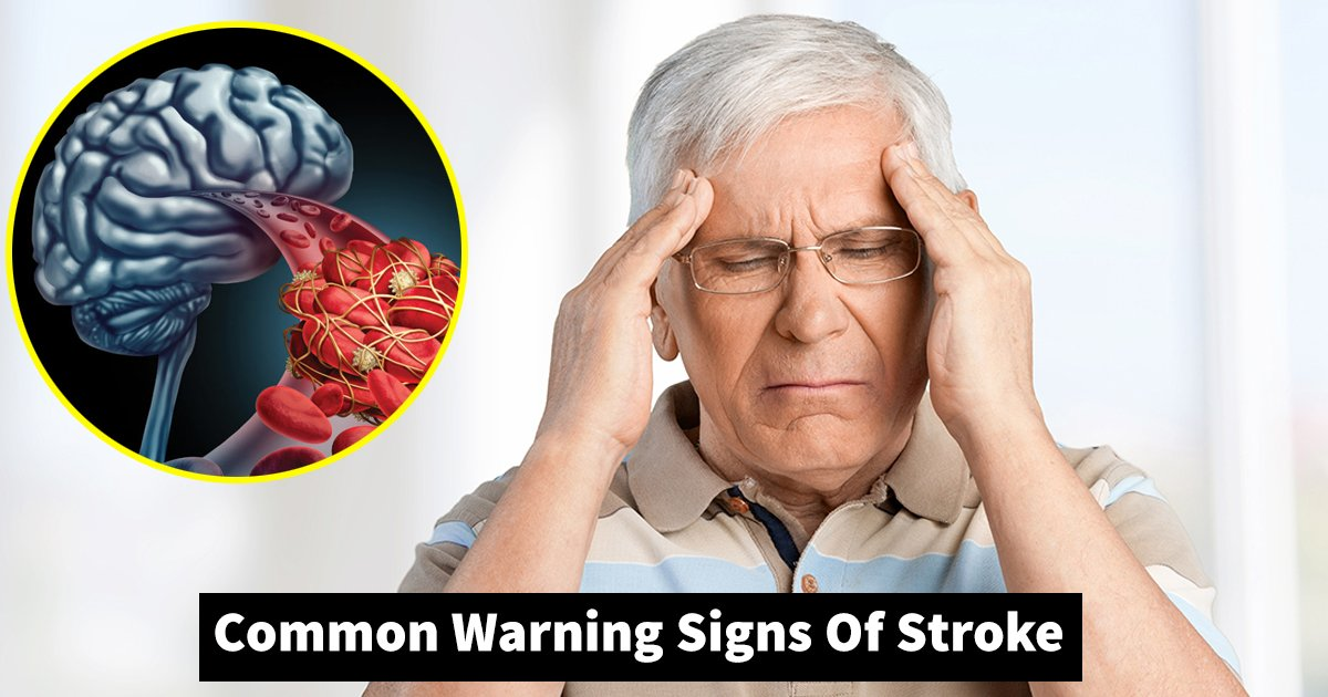 signs of stroke.jpg?resize=1200,630 - Common Warning Signs Of Stroke That Shouldn't Be Ignored