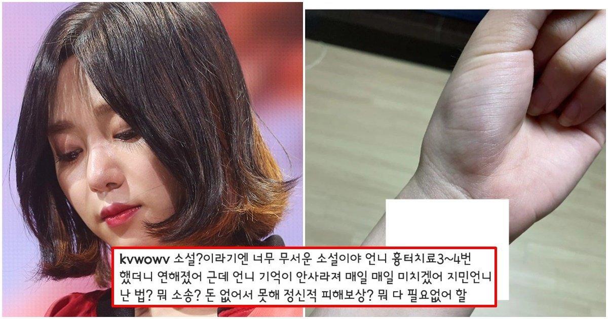 """손목의 이렇게나 많은 흉터 자국이.."""" 실시간 올라온 AOA 前멤버인 권 ..."""