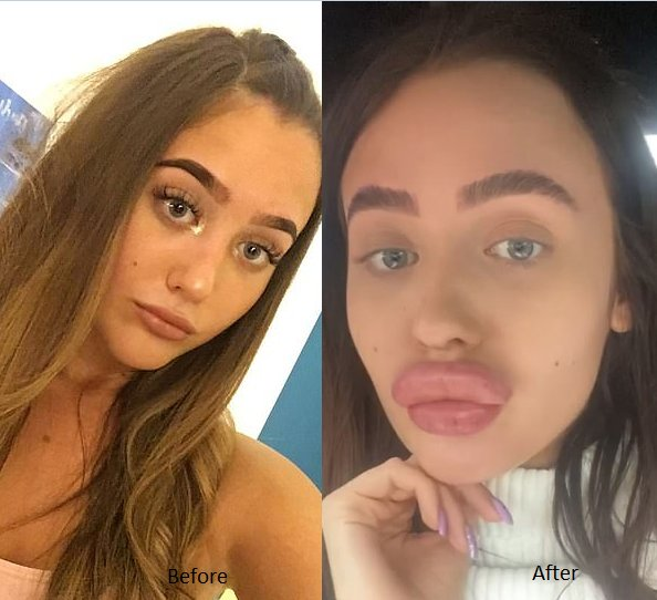 lip filler goes wrong