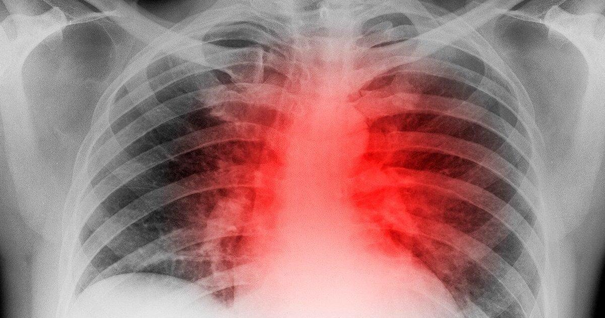"""9763e1c991d8dcc044006e1caf0fd592 e1595984603122.jpg?resize=412,232 - Covid-19 : Deux nouvelles études révèlent des séquelles cardiaques chez beaucoup de patients """"guéris"""""""