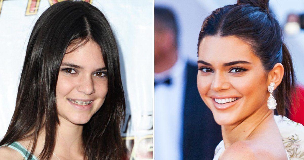 before and after braces.jpg?resize=1200,630 - 10 Stars Whose Braces Before And After Images Define Hollywood Smile