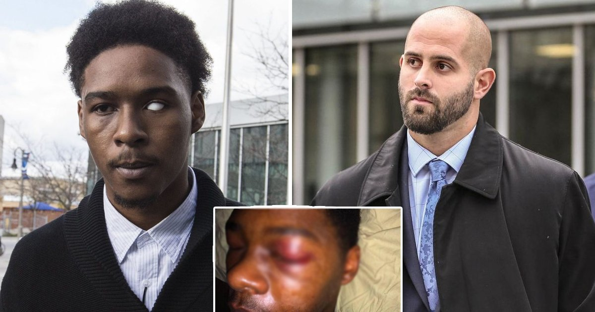 black guy beaten.jpg?resize=412,232 - Brutal Assault: Toronto Cop Convicted For Crime That Left Black Man Without An Eye