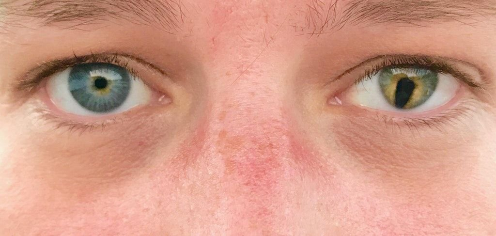 My eyes. Coloboma in left eye. : eyes | Eyes, Heterochromia eyes ...