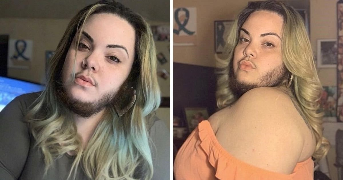 beard6.jpg?resize=412,275 - Woman Finally Embraces Her Beard After Years Of Shaving And Waxing