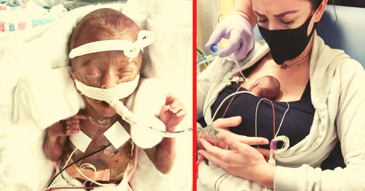 diseno sin titulo 148.png?resize=1200,630 - Parto Prematuro Le Quita La Vida A Una De Las Gemelas, Mientras La Otra Bebé Aún Lucha Por Su Vida