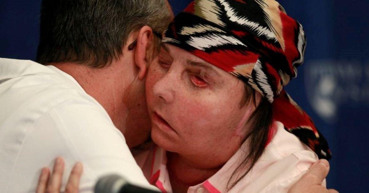 ec8db8eb84ac 1 9.jpg?resize=412,232 - Brave Carmen Tarleton Dares Second Face Transplant Surgery