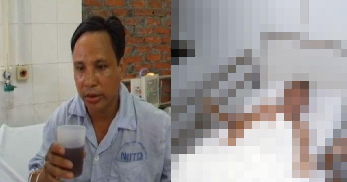 inu byouki.png?resize=412,232 - 致死率100%ウイルスにかかった男性の症状を映した衝撃的な動画(動画アリ)